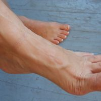 foot arch problems