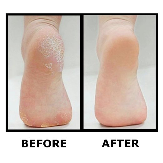 Callus remover before and after